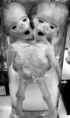 Human_conjoined_twins_DSC09364